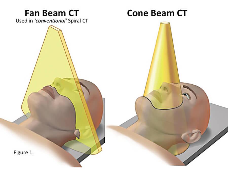 tecnologia_Cone_Beam