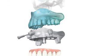 implantologia-computer-guidata_studiofazialboempoli