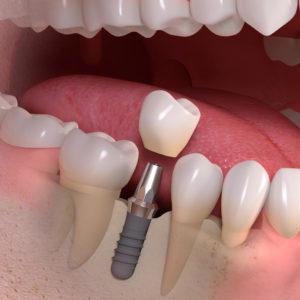 Implantologia Dente Singolo