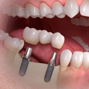 Implantologia su più denti