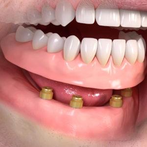 Implantologia a Empoli - Tutti i denti removibili