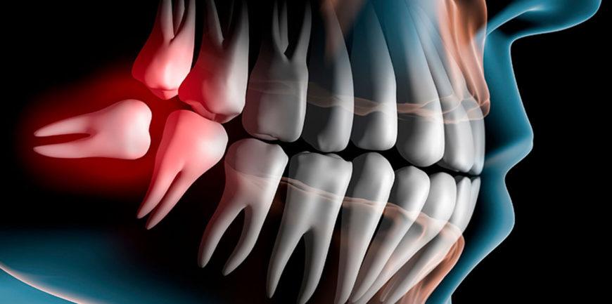 Studio dentistico Fazi-Albo estrarre-denti-del-giudizio