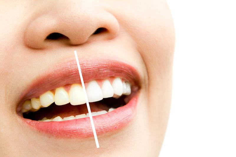 Differenza tra igiene orale e sbiancamento dentale