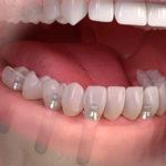 Implantologia tutti i denti fissi