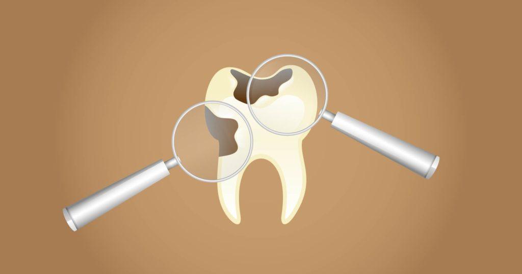 Cosa provoca mal di denti: La carie