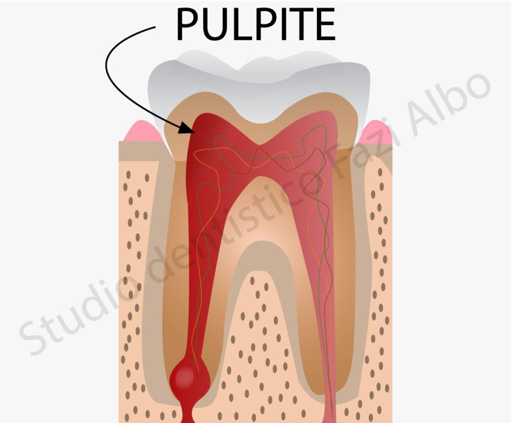 Cosa provoca il mal di denti: La pulpite
